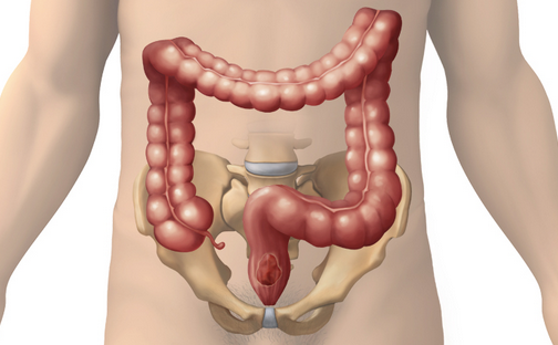 Colon Hydrotherapy Minneapolis Colon Hydrotherapy St. Paul